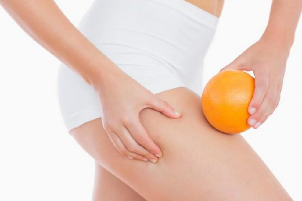 Casi todas las mujeres tenemos celulitis o piel de naranja.