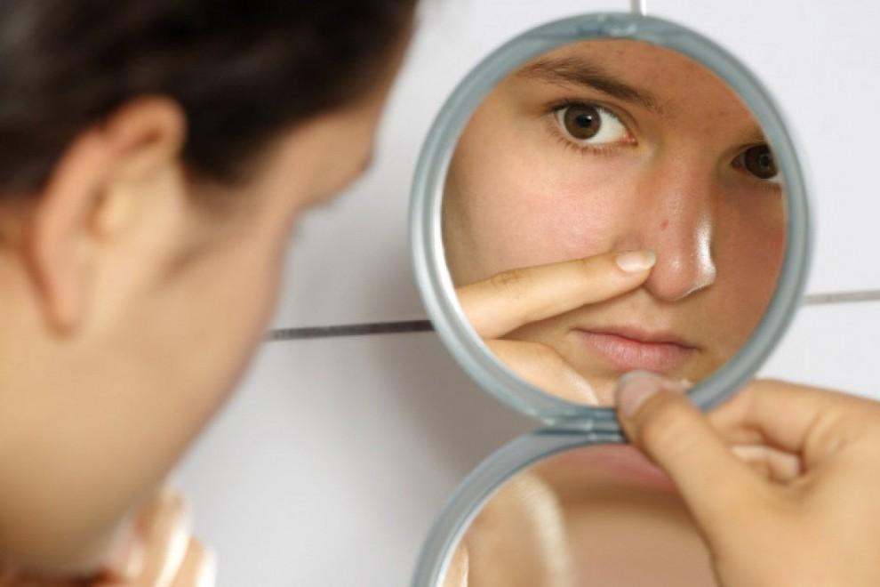 Cómo Eliminar Granos De La Cara De Forma Rápida Y Natural