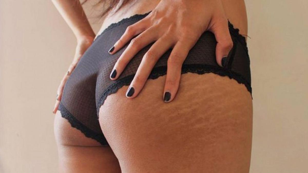 Las estrías son unas marcas que aparecen debido a un estiramiento en la piel.