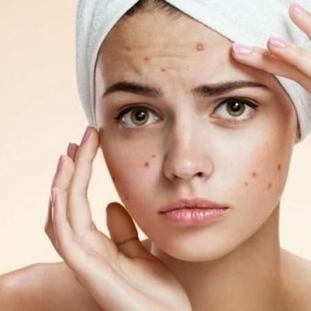 Existen remedios caseros naturales para reducir la aparición del acné.