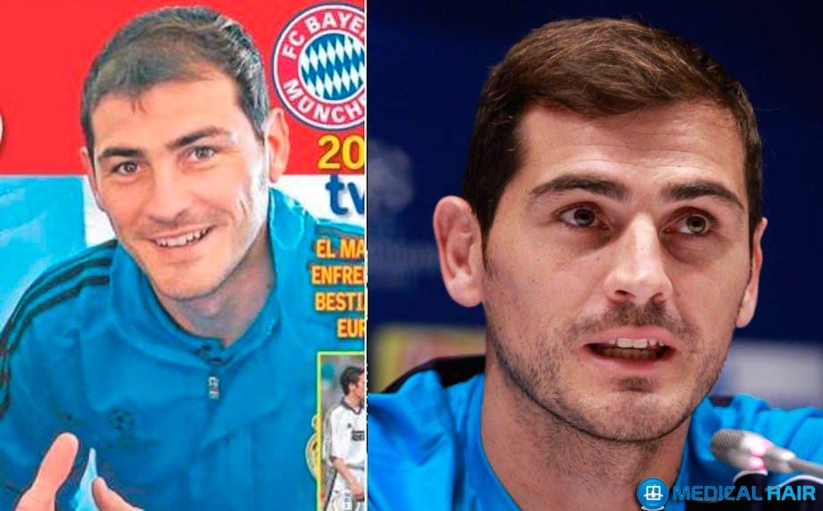 Íker Casillas trasplante de pelo