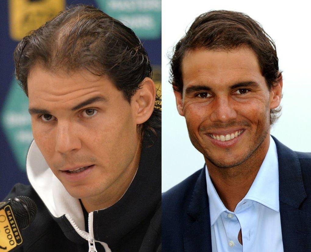 Rafael Nadal trasplante de pelo