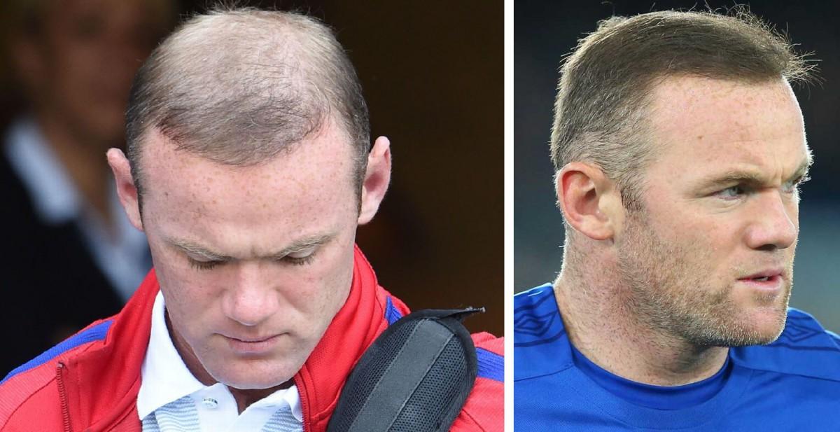 Wayne Rooney pelo
