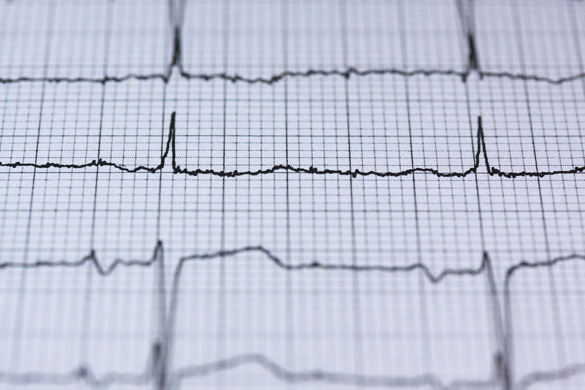Taquicardia Electrocardiograma