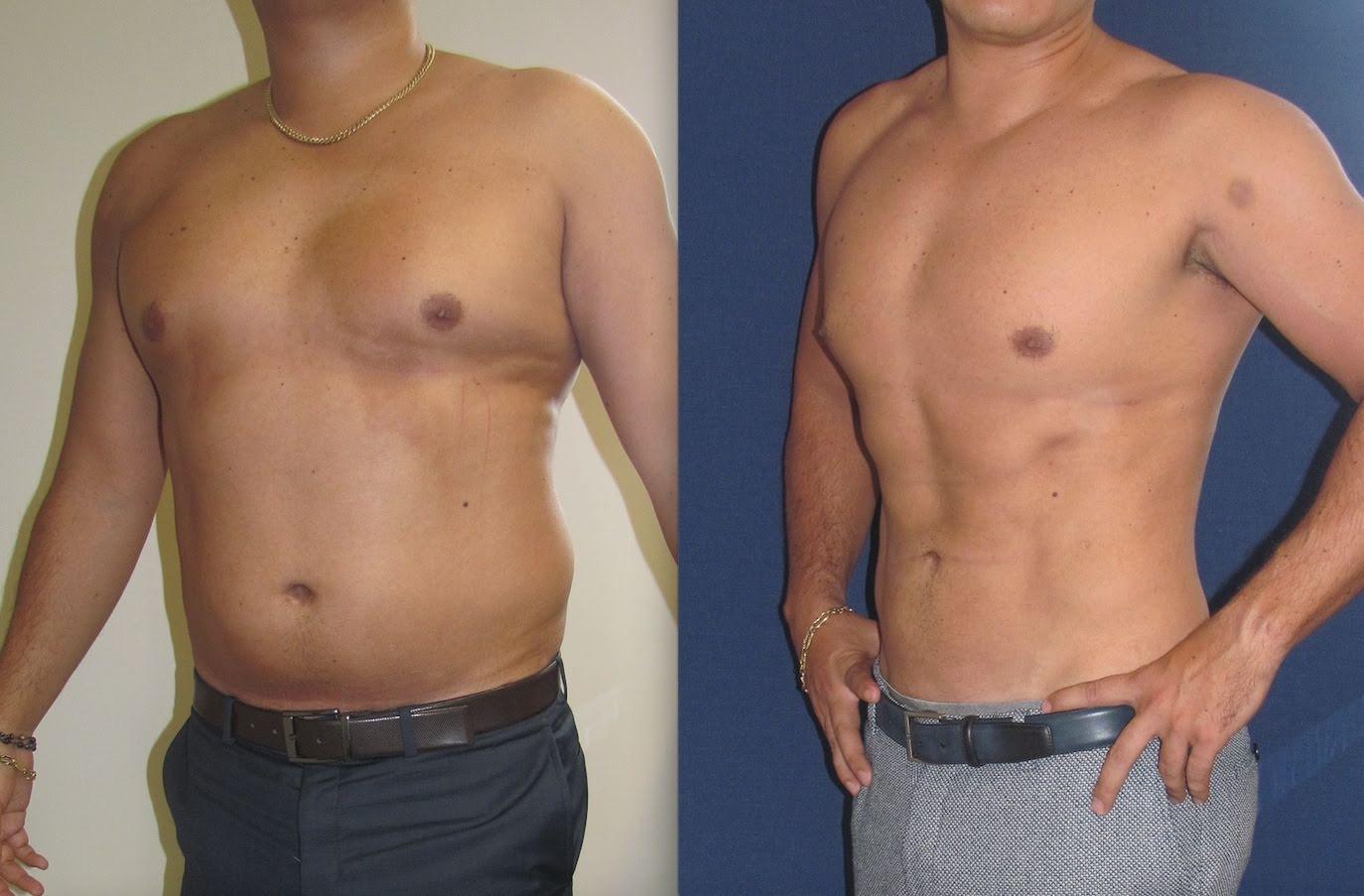 Liposucción hombres