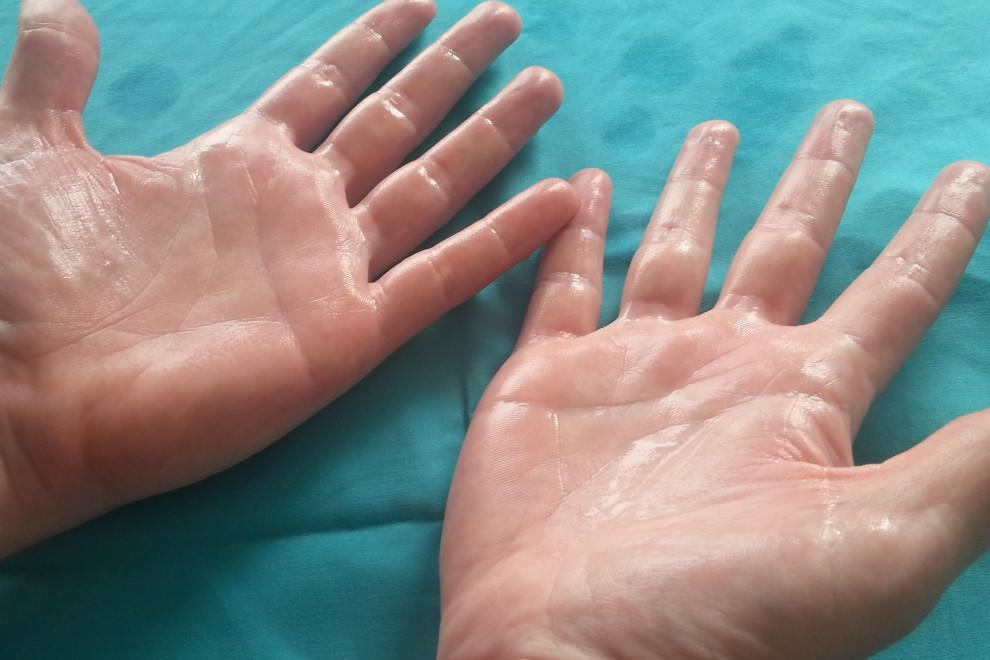 Cirugía hiperhidrosis