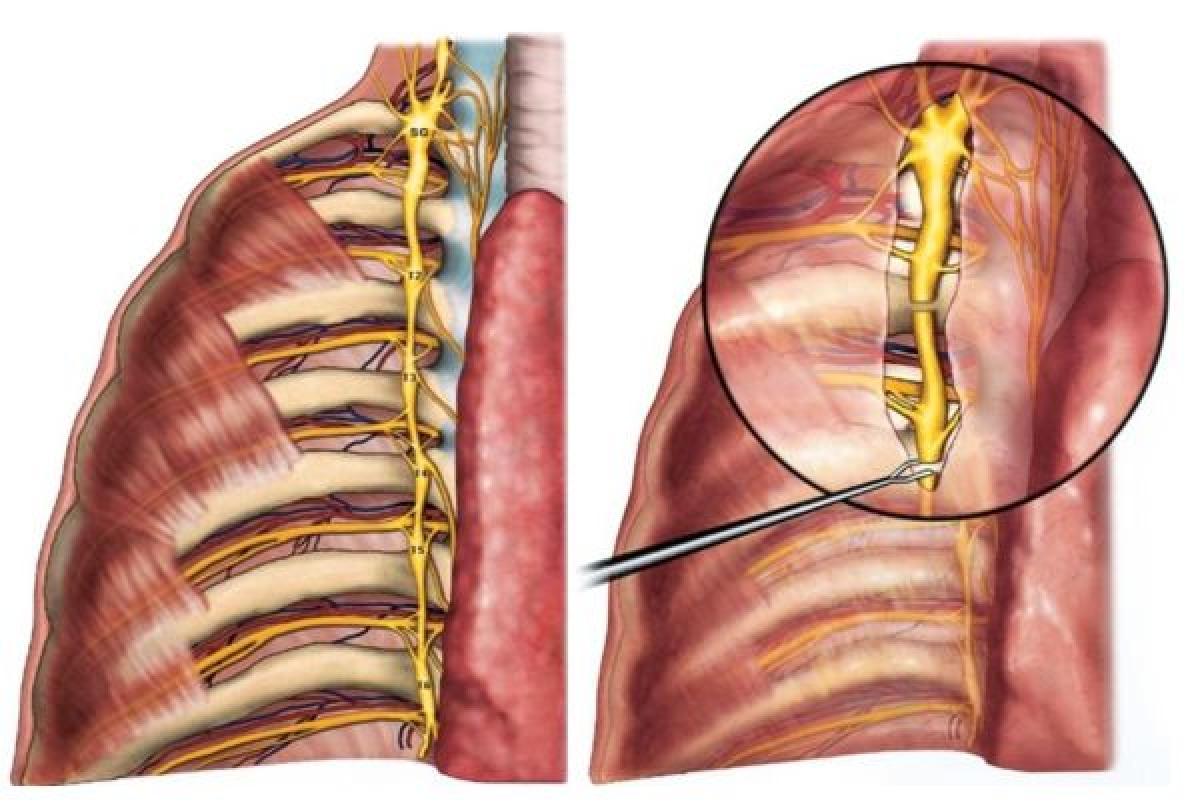 Simpatectomía torácica