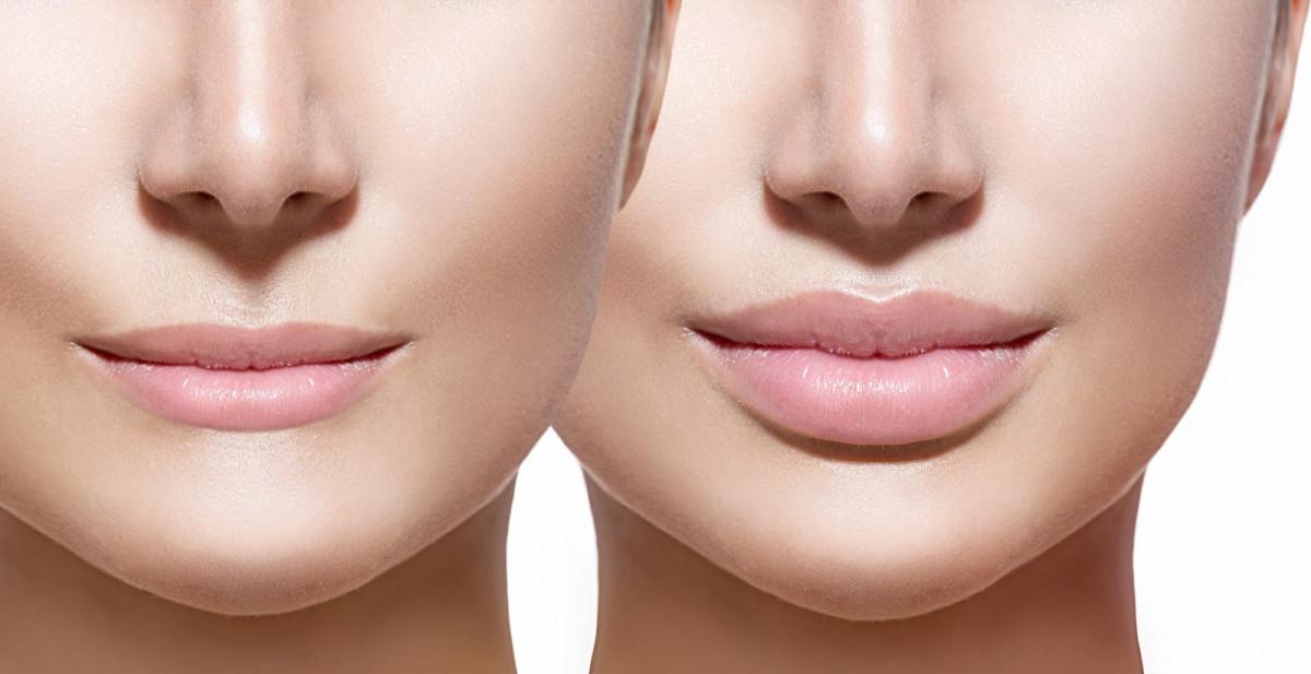 Cirugía labios
