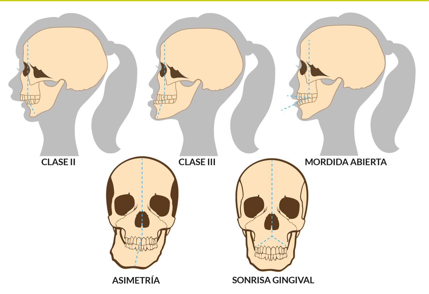 Cirugía ortognática tipos