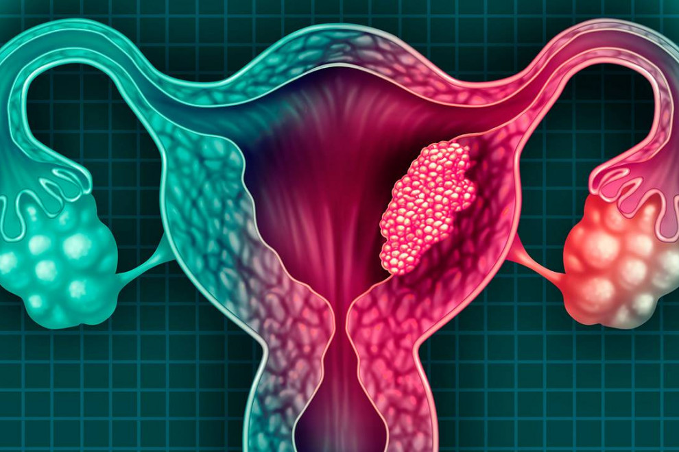 Cáncer cuello uterino