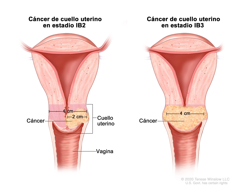 Qué es cáncer cuello uterino