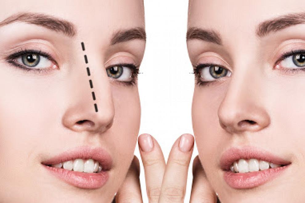 Cirugía alargar nariz corta