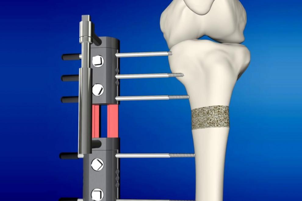 Cirugía crecer alargamiento óseo