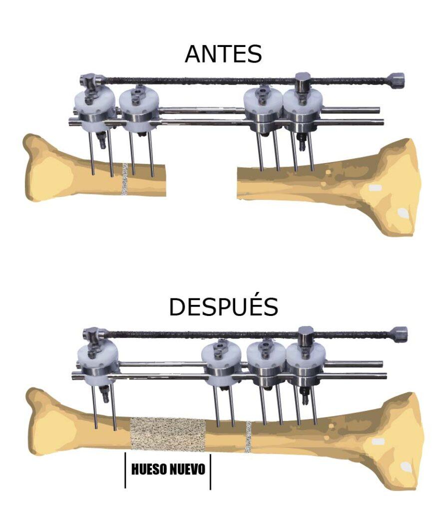 Cirugía alargamiento óseo procedimiento