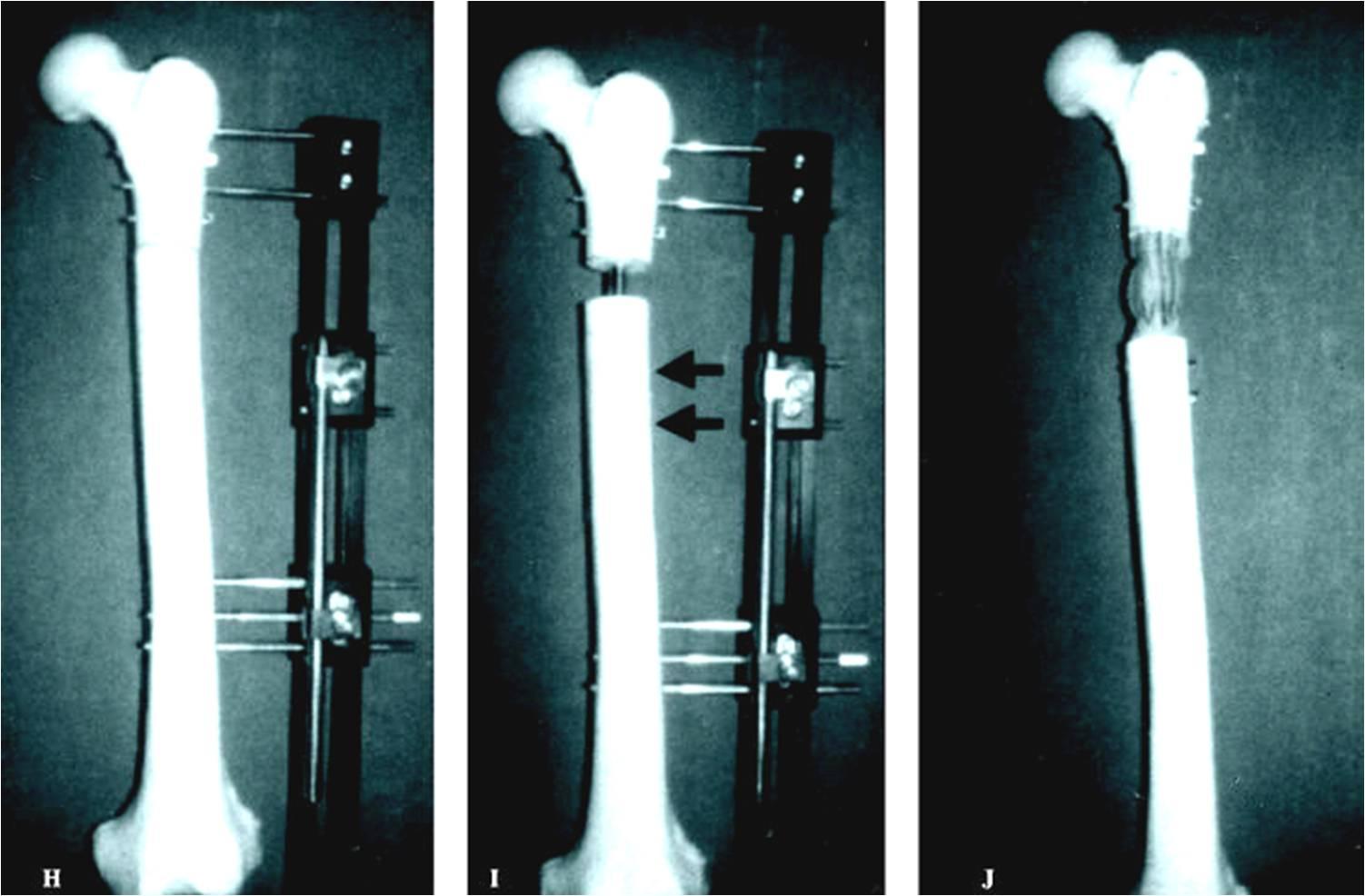 Cirugía alargamiento huesos consideraciones