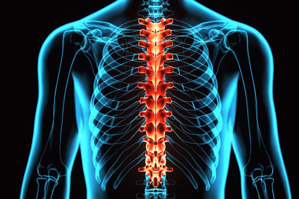 Estenosis conducto vertebral