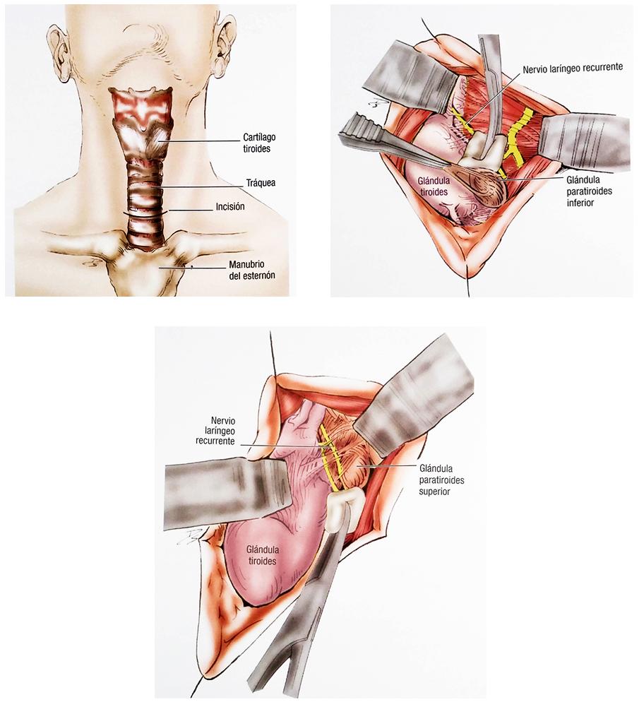 Cirugía glándulas paratiroideas