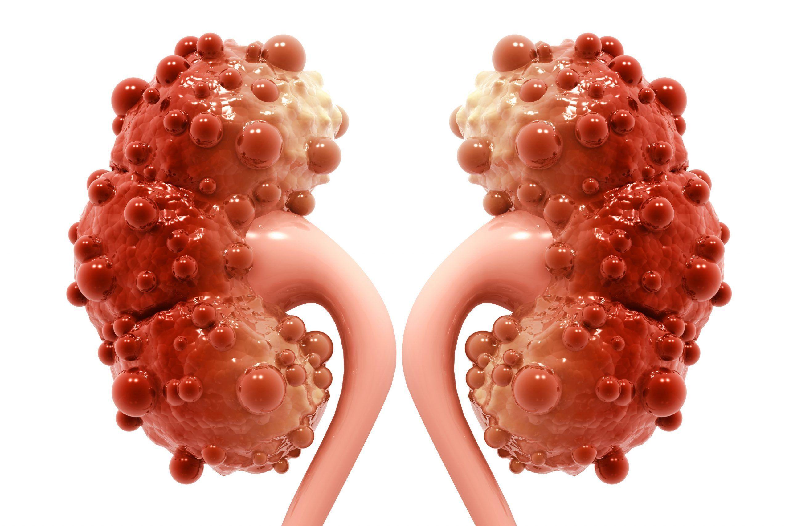Enfermedad renal poliquística
