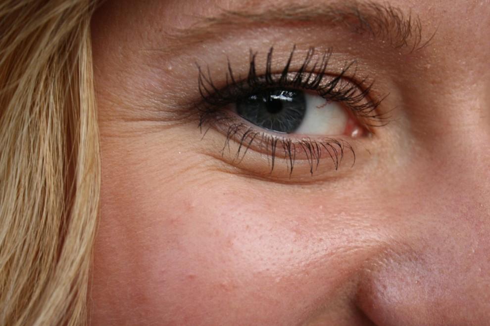 Podemos suavizar las líneas de expresión en los ojos con estos remedios caseros.